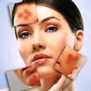 cuidar piel
